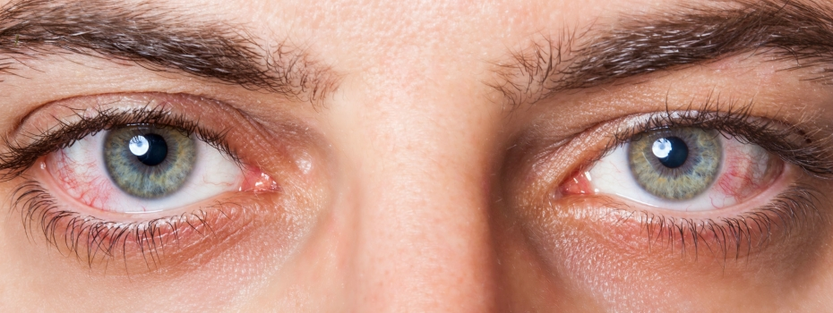 Pink eye, conjunctivitis eye doctor in Idaho Falls, Pocatello, Rexburg and St. Anthony.